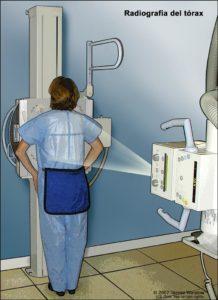 rayos x de torax durante el embarazo