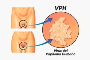 pruebas para diagnosticar el virus del papiloma humano