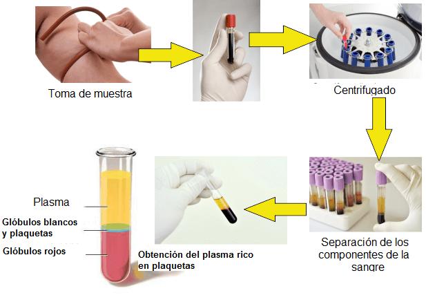 plasma rico en plaquetas y tratamiento de próstatas